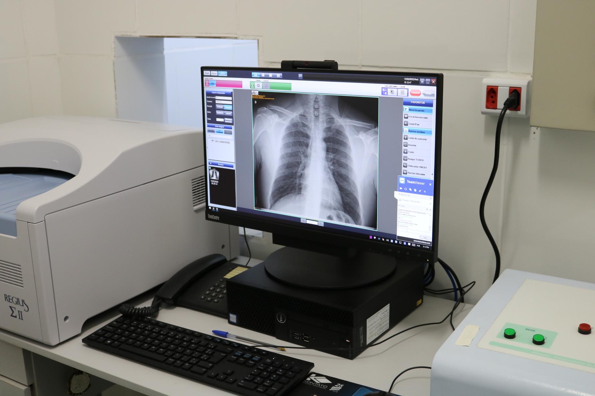Saúde adquire Raio-X Digital